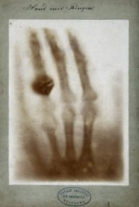 The bones of a hand with a ring on one finger, viewed through x-ray. Photoprint from radiograph by W.K. von Röntgen, 1895.